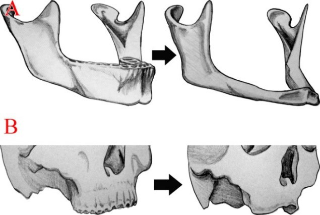 Bone Resorption of Edentulous Male Fascial Deformities