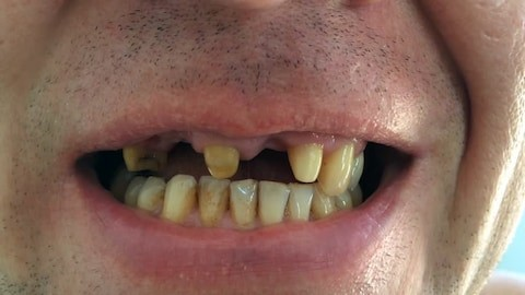 lack of tissue around adjacent teeth (of the lost tooth) that leads to plaque build-up and bacteria formation